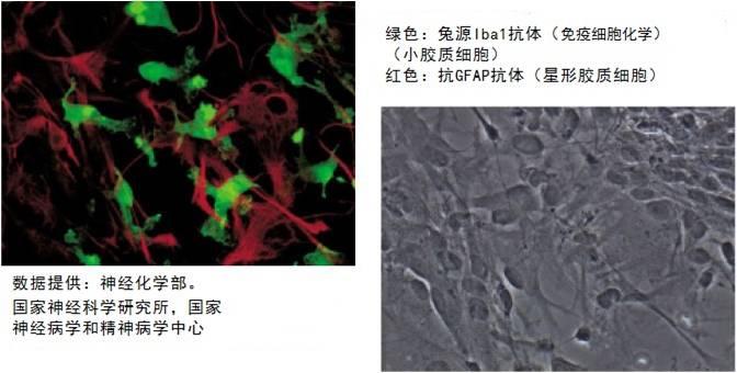 Anti Iba1, Rabbit (for Immunocytochemistry)-价格-厂家-供应商-wko富士胶片和光